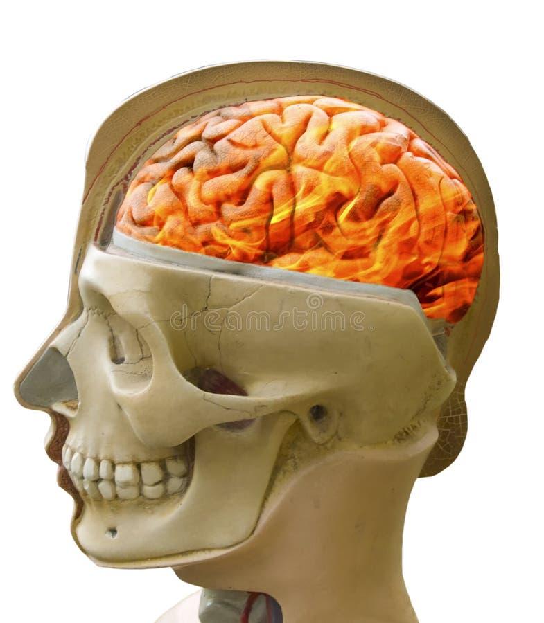 Dor de cabeça Cérebro ardente no fogo Anatomia da cabeça imagens de stock