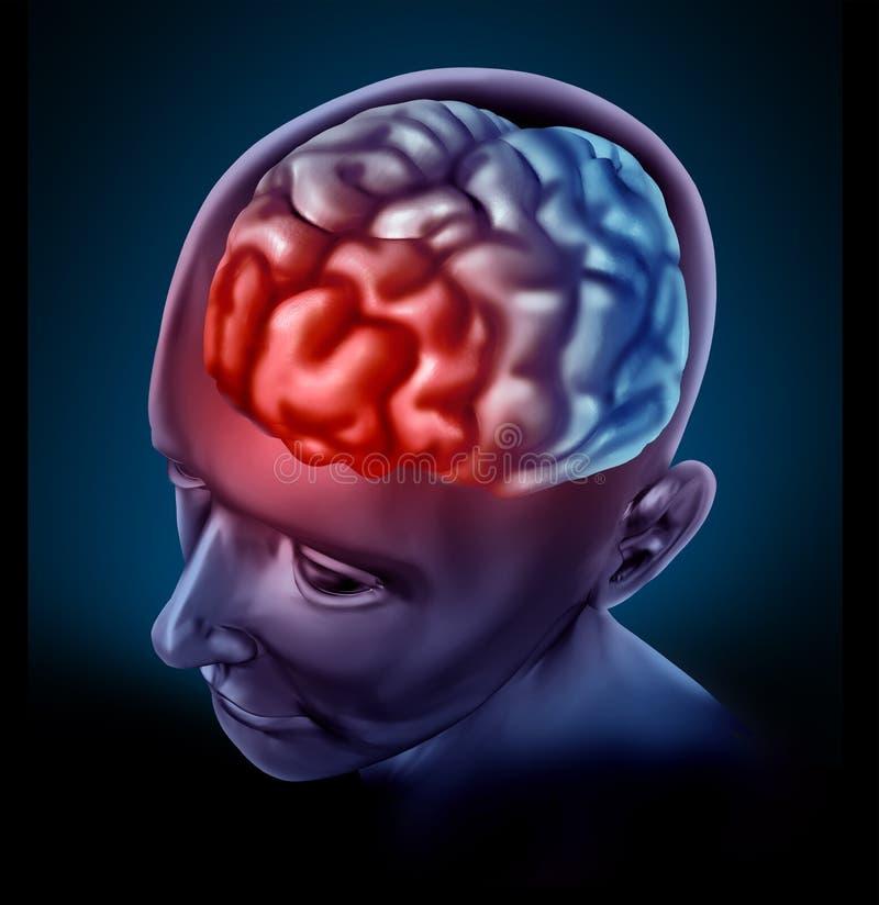 Dor de cabeça de Migrain ilustração do vetor