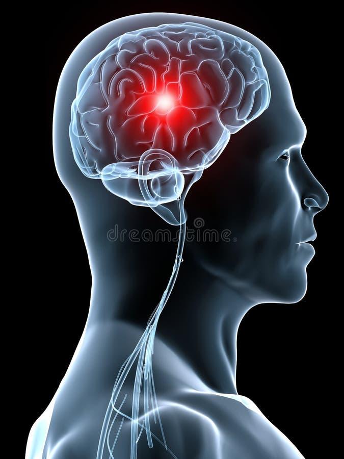 Dor de cabeça/enxaqueca ilustração do vetor