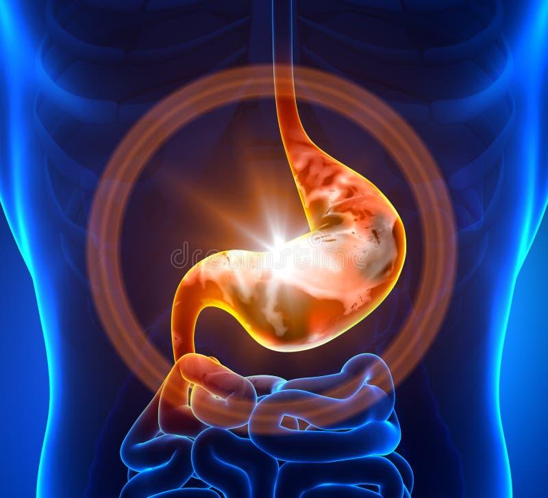 Dor de estômago ilustração stock