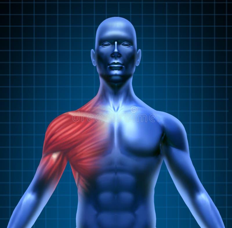 Dor de músculo do ombro ilustração do vetor