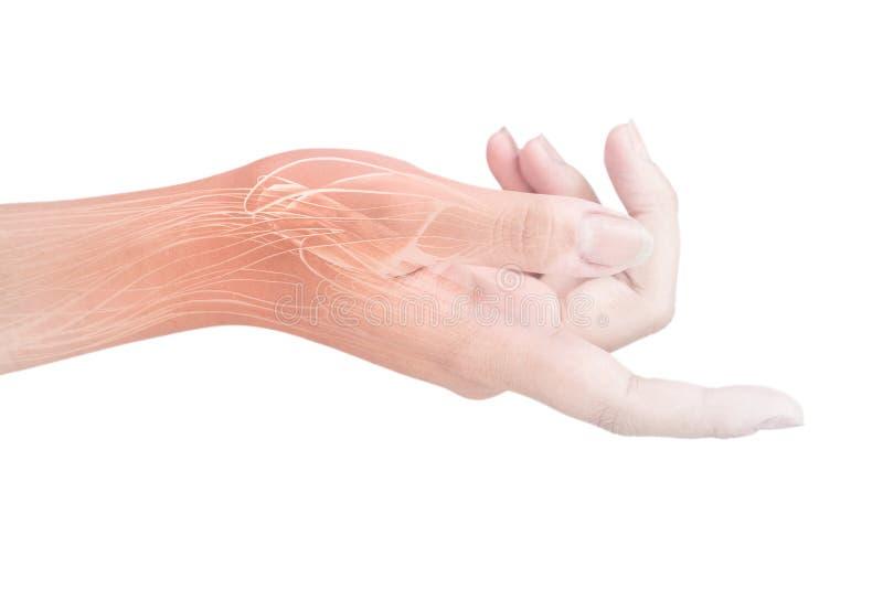 Dor de músculo do pulso imagem de stock