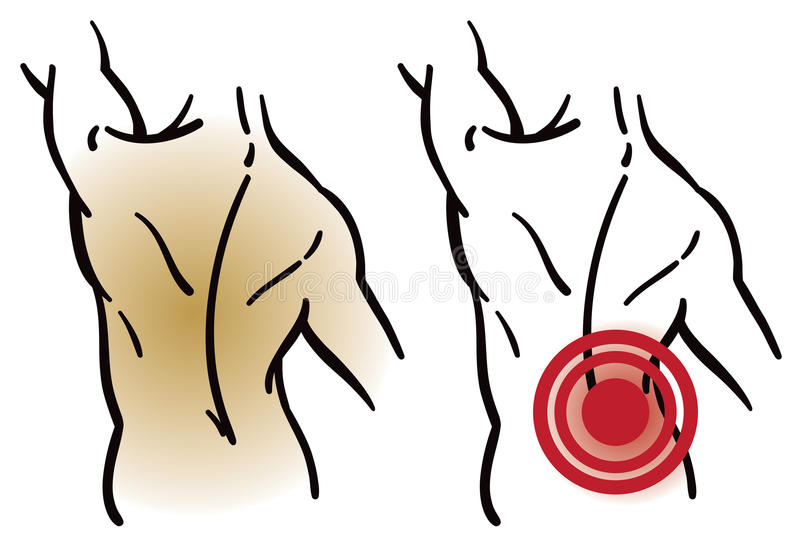 Dor de músculo traseiro ilustração royalty free