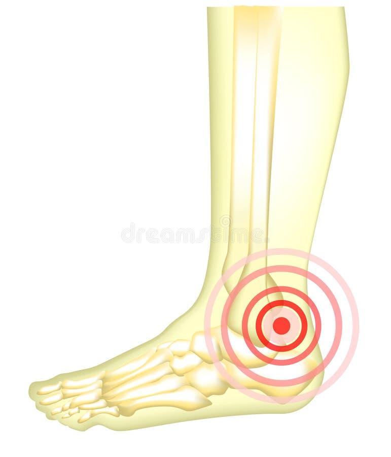 Dor de pés ilustração do vetor