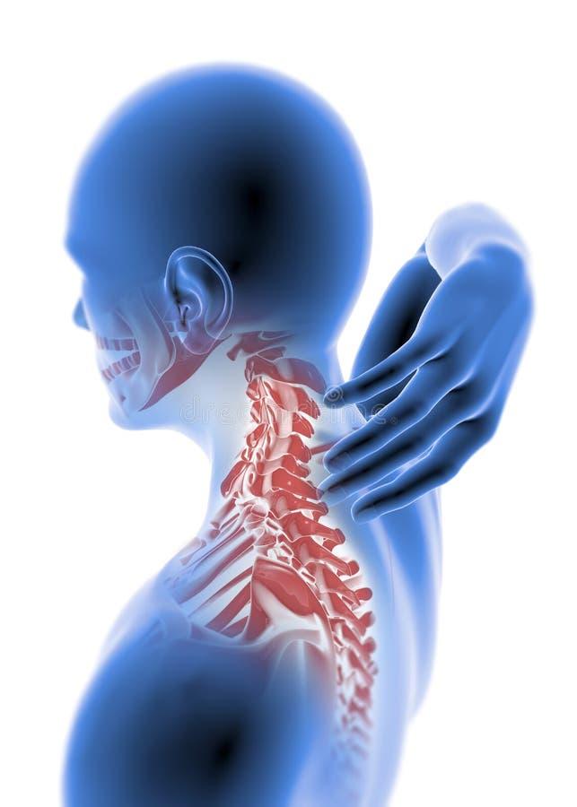 Dor de pescoço da anatomia do homem ilustração stock