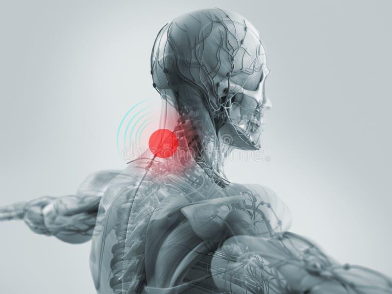 Dor de pescoço mostrando modelo da anatomia ilustração stock