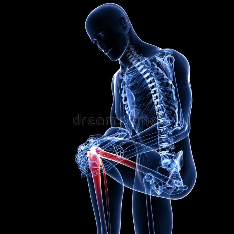 Dor do joelho no preto ilustração do vetor