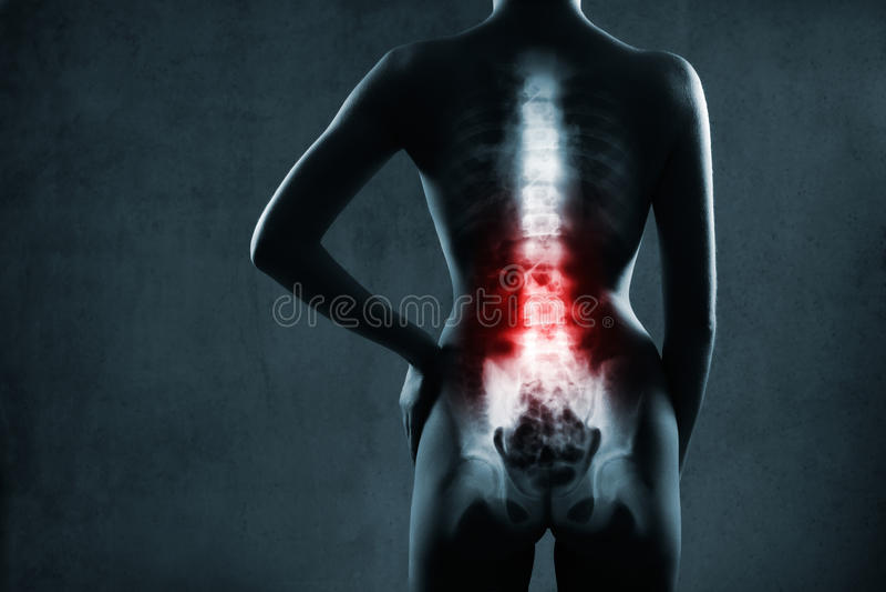 Dorn im Röntgenstrahl.  Lumbaler Dorn wird hervorgehoben. stockbilder
