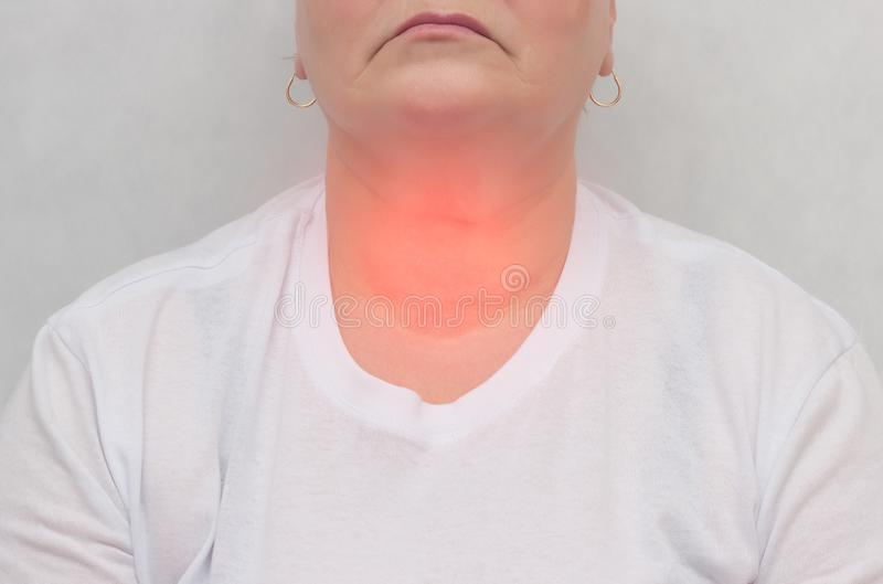 Dorosła kobieta guzki w tarczycowym gruczole na białym tle który tarczycowego gruczoł, w górę, dokrewny system zdjęcia royalty free