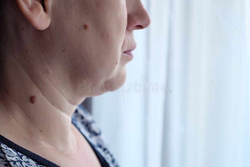 Dorosła kobieta z wielką gramocząsteczką na jej szyi i twarzy zdjęcia stock