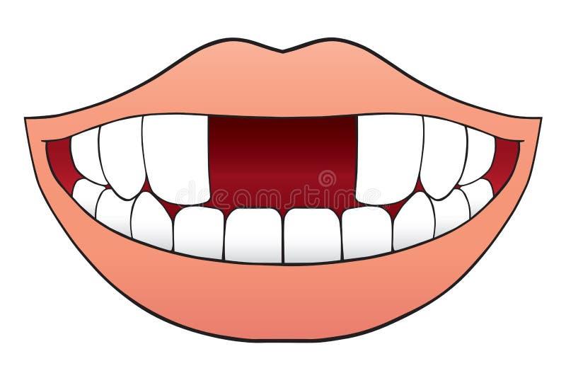 Dos Front Teeth Missing ilustración del vector