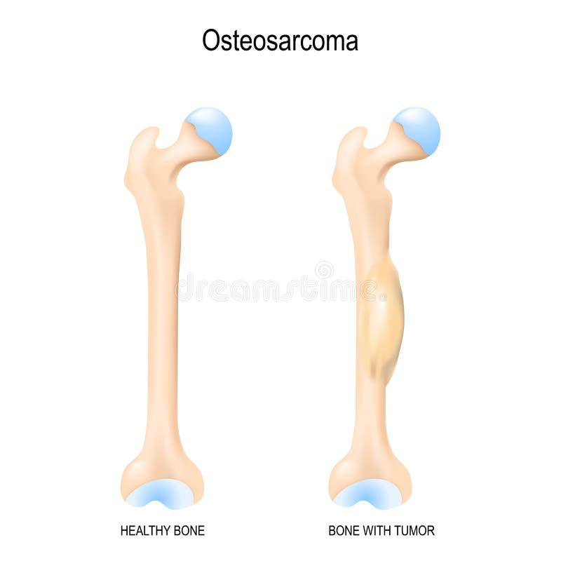 Dos huesos humanos: fémur y hueso sanos con osteosarcoma stock de ilustración