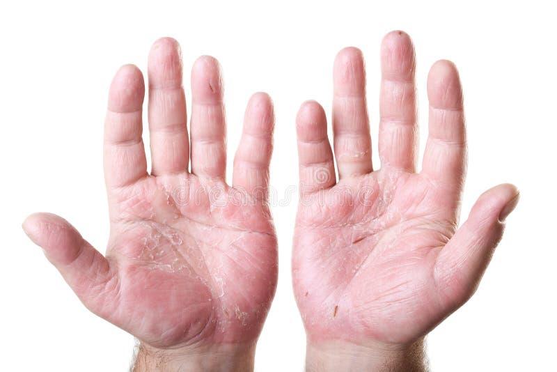 Dos palmas masculinas con eczema aisladas en blanco fotos de archivo