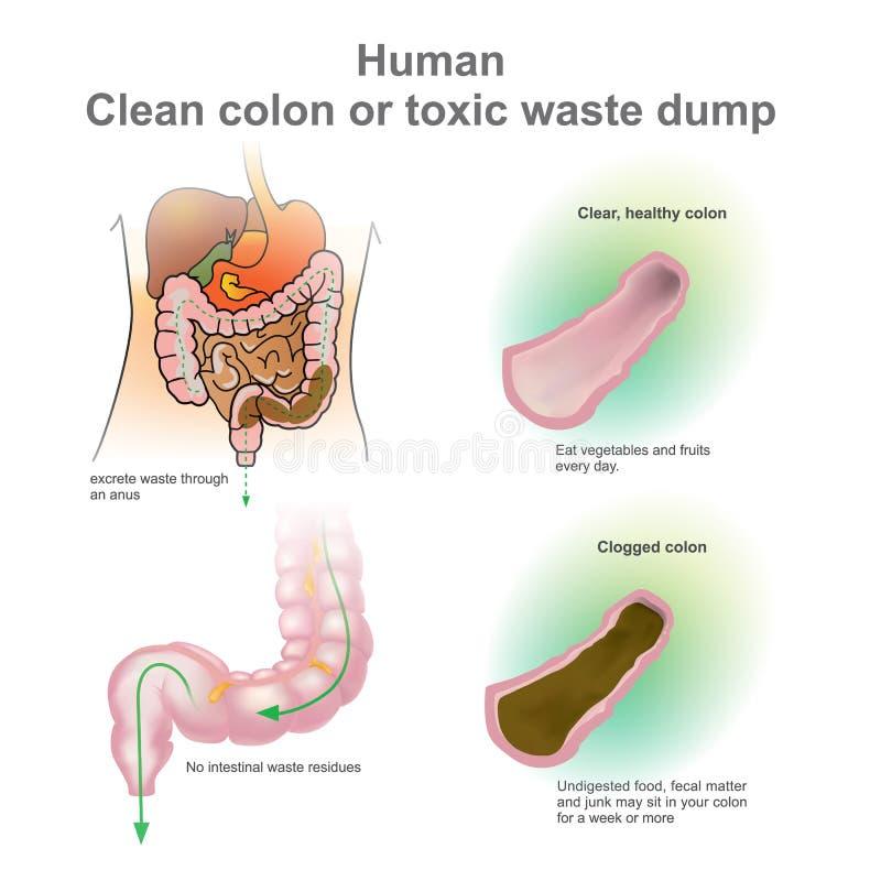 Dos puntos limpios humanos o descarga inútil tóxica Vector, ejemplo stock de ilustración