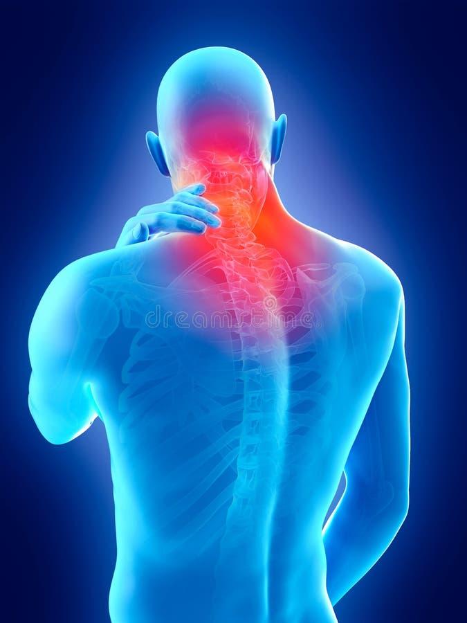 douleur cervicale illustration libre de droits