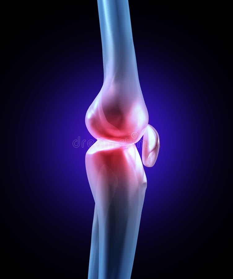 Douleur d'articulation de genou illustration libre de droits