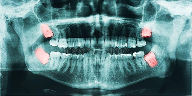 Douleur de dents de sagesse illustration de vecteur