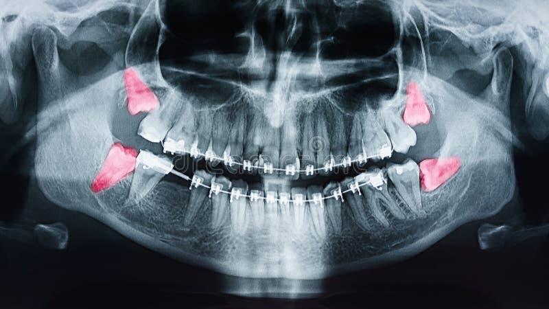 Douleur de dents de sagesse croissante sur le rayon X images stock