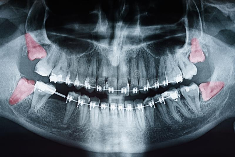 Douleur de dents de sagesse croissante sur le rayon X photos stock