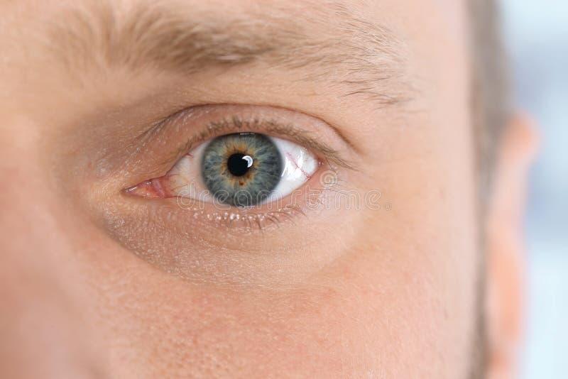 Douleur de jeune homme d'allergie, plan rapproché photographie stock