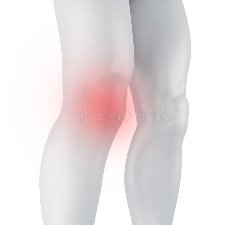 douleur du genou 3d illustration de vecteur