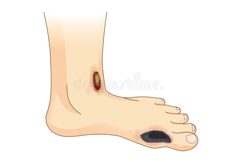 Douleur et ulcères diabétiques de pied illustration libre de droits