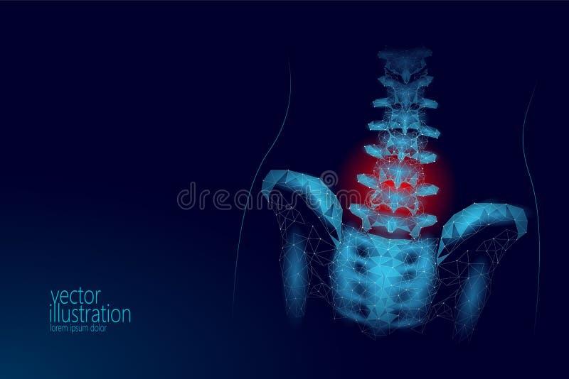 Douleur lombaire de radiculite de hanche humaine d'épine bas poly Ligne polygonale géométrique médecine de point de triangle de p illustration stock