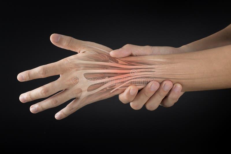Douleur musculaire de poignet photo libre de droits