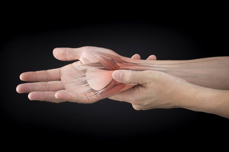 Douleur musculaire de poignet image stock