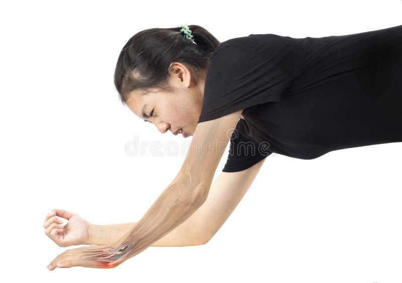 Douleur musculaire de poignet images libres de droits