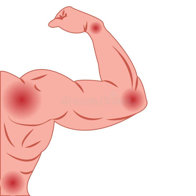 Douleurs articulaires dans des bras de corps masculin infectée ou de blessure illustration stock