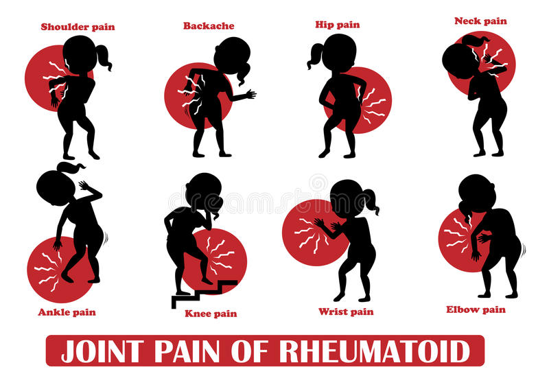 Douleurs articulaires de rhumatoïde illustration de vecteur