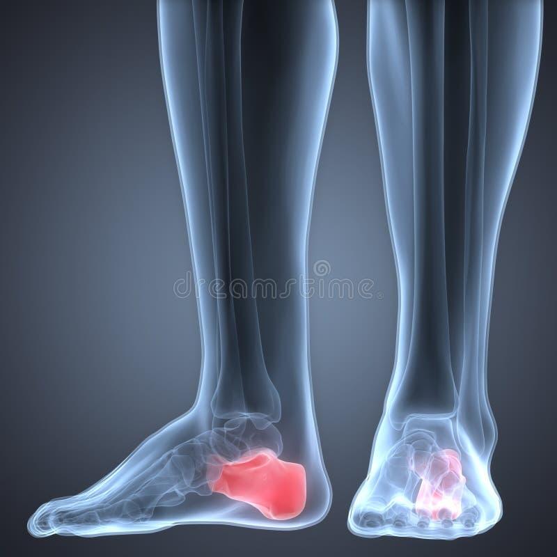 Douleurs articulaires humaines de jambe (os de Calcaneus) illustration stock