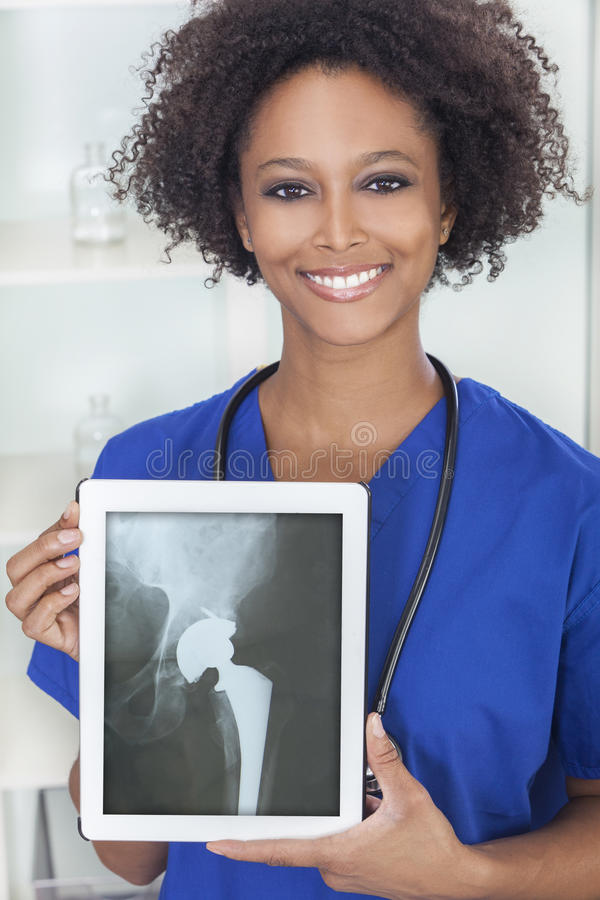 Doutor americano africano Raio X Tabuleta Computador da mulher fotografia de stock