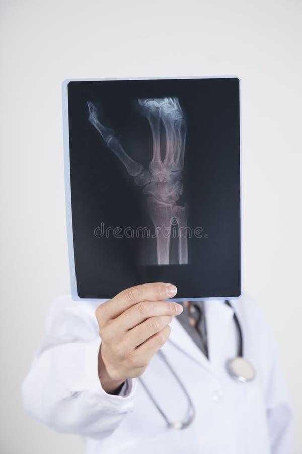 Doutor com radiografia imagem de stock royalty free
