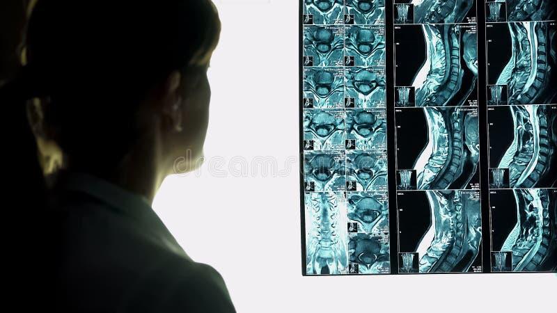 Doutor fêmea que olha a imagem do roentgen, raio X paciente do pescoço, diagnosticando o paciente fotografia de stock