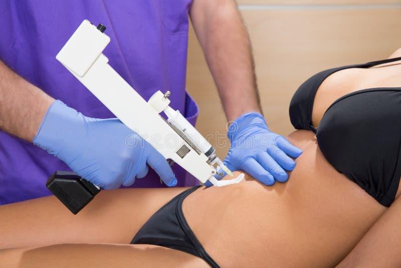Download Doutor Mesotherapy Abdominal Da Terapia Da Arma à Mulher Foto de Stock - Imagem de paciente, saúde: 29830636