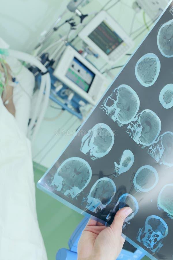 Doutor que examina a varredura do CT do paciente em ICU foto de stock