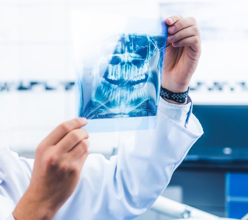 Doutor que guarda o instantâneo do raio X imagem de stock