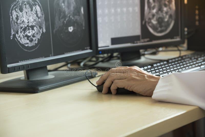 Doutor que olha MRI no monitor do computador fotos de stock