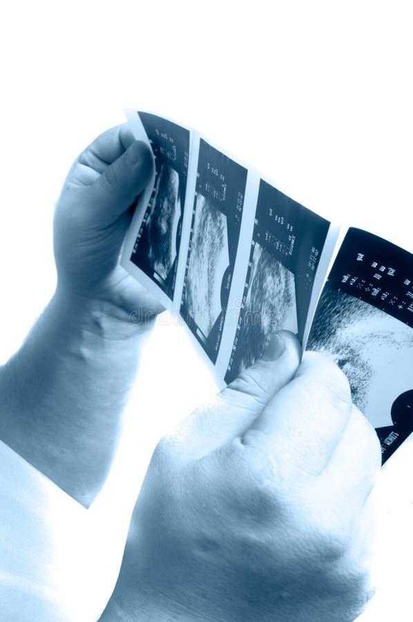 Doutor que verific uma exposição fotografia de stock