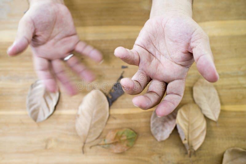 Drżenie od Parkinson obrazy royalty free