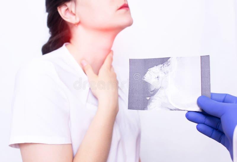 Dr. OTORRINOLARINGOLÓGICO guarda uma imagem do raio X no fundo de uma moça que tenha a inflamação e a garganta inflamada devido a fotos de stock