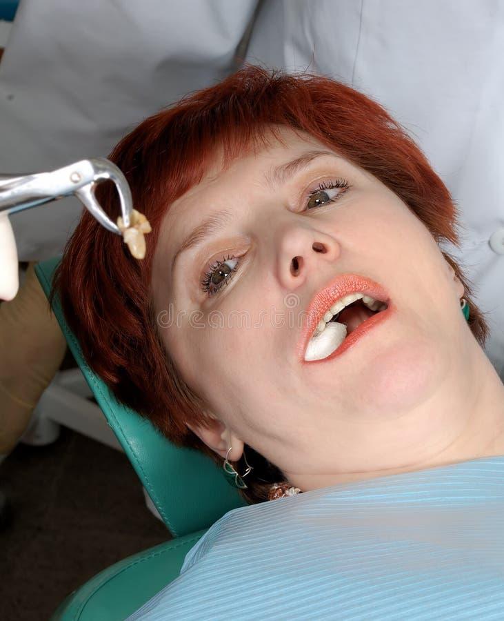dra ut henne kvinnan för tanden för lookmunnen den öppna fotografering för bildbyråer