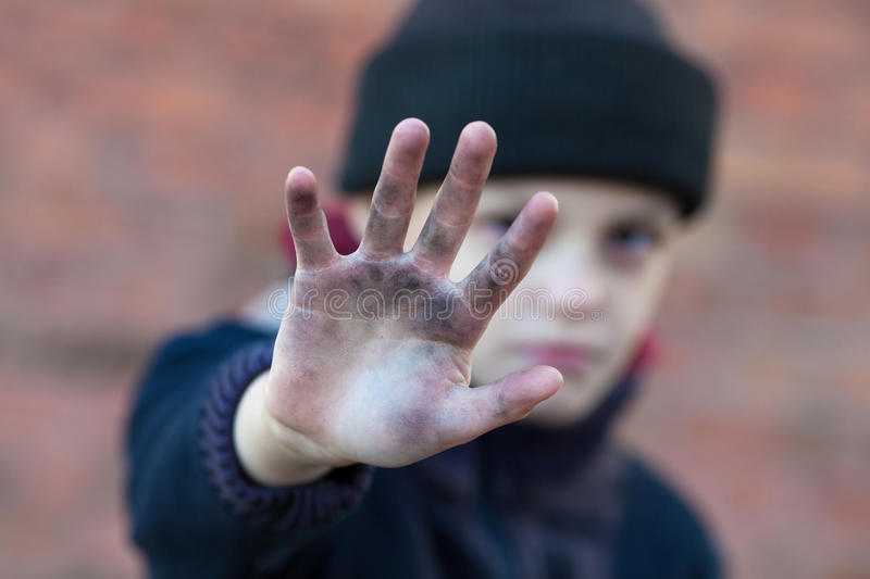 Dramatic portrait of a little homeless boy. Dirty hand, poverty, city, street royalty free stock image