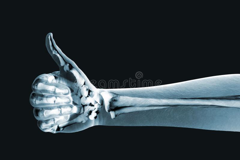 Download Dramatized X Ray Of A Hand Thumbs Up Stock Image - Image: 26696909