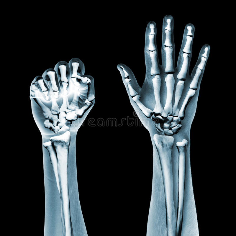 Download Dramatized X Ray Of Two Hands On Black Stock Image - Image: 26696929