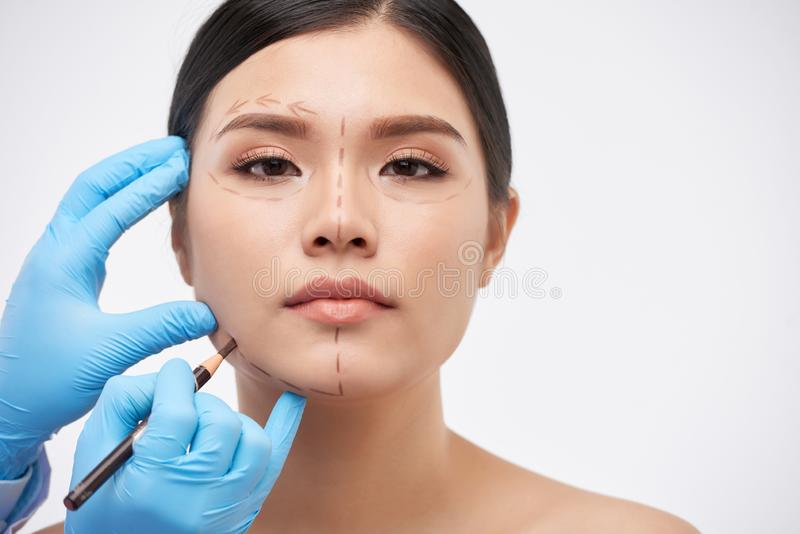 Drawing marks for surgery. Cosmetic surgeon drawing lines on face of young beautiful woman royalty free stock photo