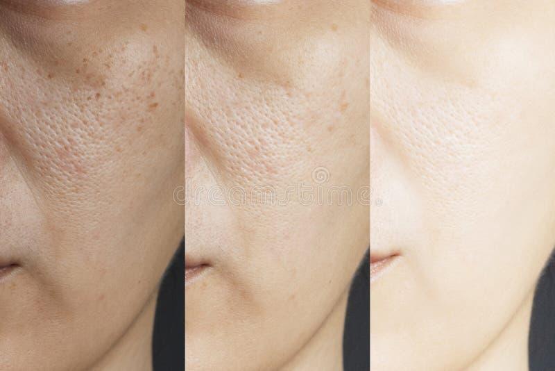 Drei Bilder verglichen Effekt vor und nach Behandlung Haut mit Problemen der Sommersprossen, der Pore, der stumpfen Haut und der  lizenzfreie stockfotografie