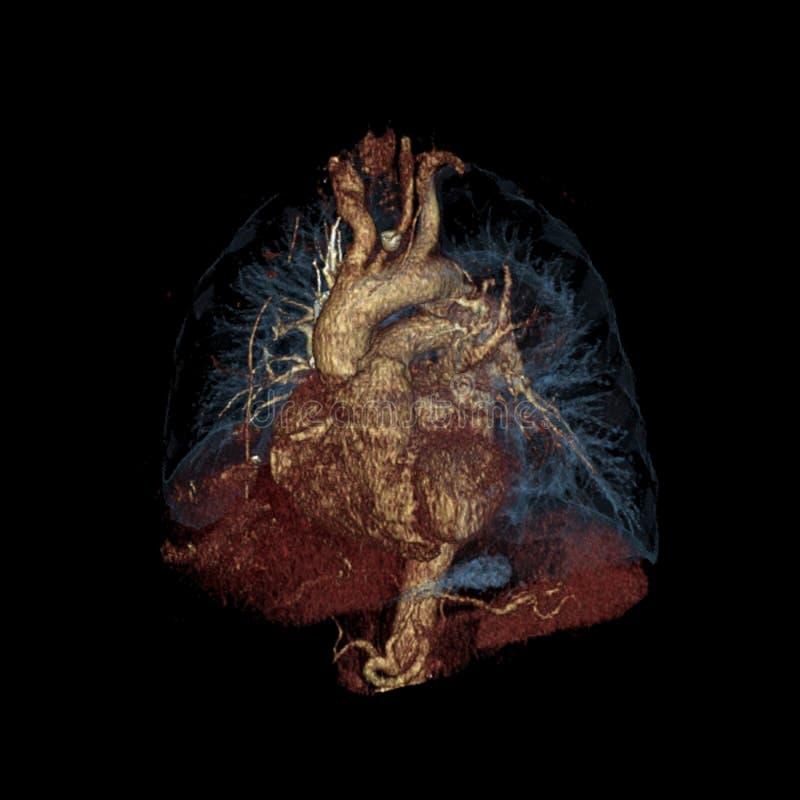 Dreidimensionales Farbcomputertomographiebild des Herzens und der Lungen lokalisiert auf Schwarzem stockfotos